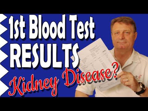 1 Gram of NMN, 1 Gram of Resveratrol & 1 Gram of TMG a Day; My Baseline Blood Tests